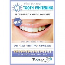 Tooth Whitening  Kit Fairy